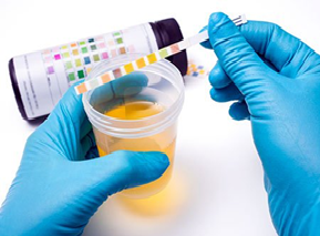 Qué es el análisis químico de tira reactiva de orina